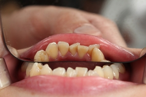 Information about Dental Implants 35