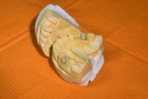Top Dental Implants 36