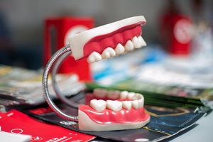 Info about Dental Implants Bulgaria 22