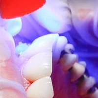 Information about Dental Tourism 33