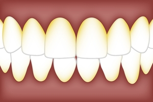 Info about Dental Implants 8